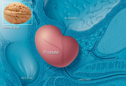 phototake_rm_photo_of_englarged_prostate